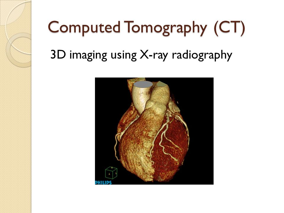 Computed Tomography (CT) 3D imaging using X-ray radiography