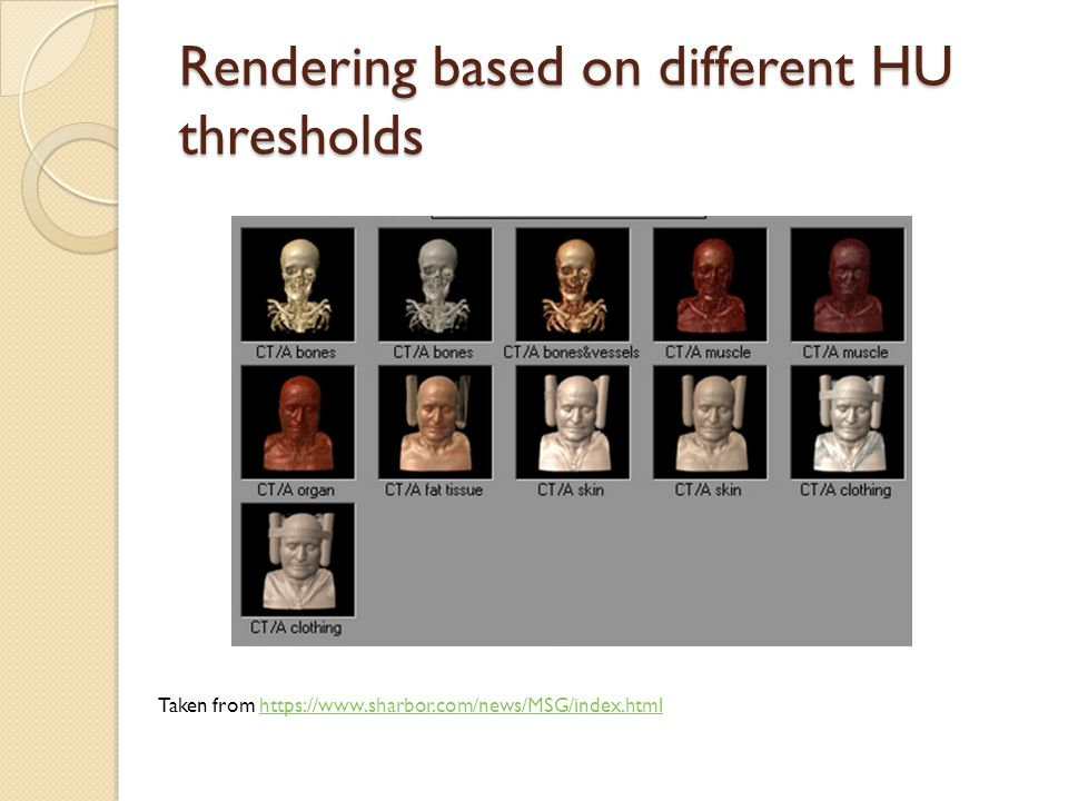 Rendering based on different HU thresholds Taken from https://www.sharbor.com/news/MSG/index.htmlhttps://www.sharbor.com/news/MSG/index.html