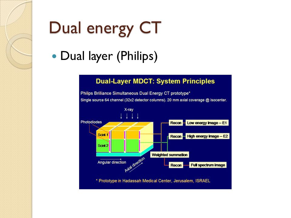 Dual energy CT Dual layer (Philips)