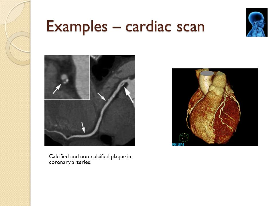 Examples – cardiac scan Calcified and non-calcified plaque in coronary arteries.