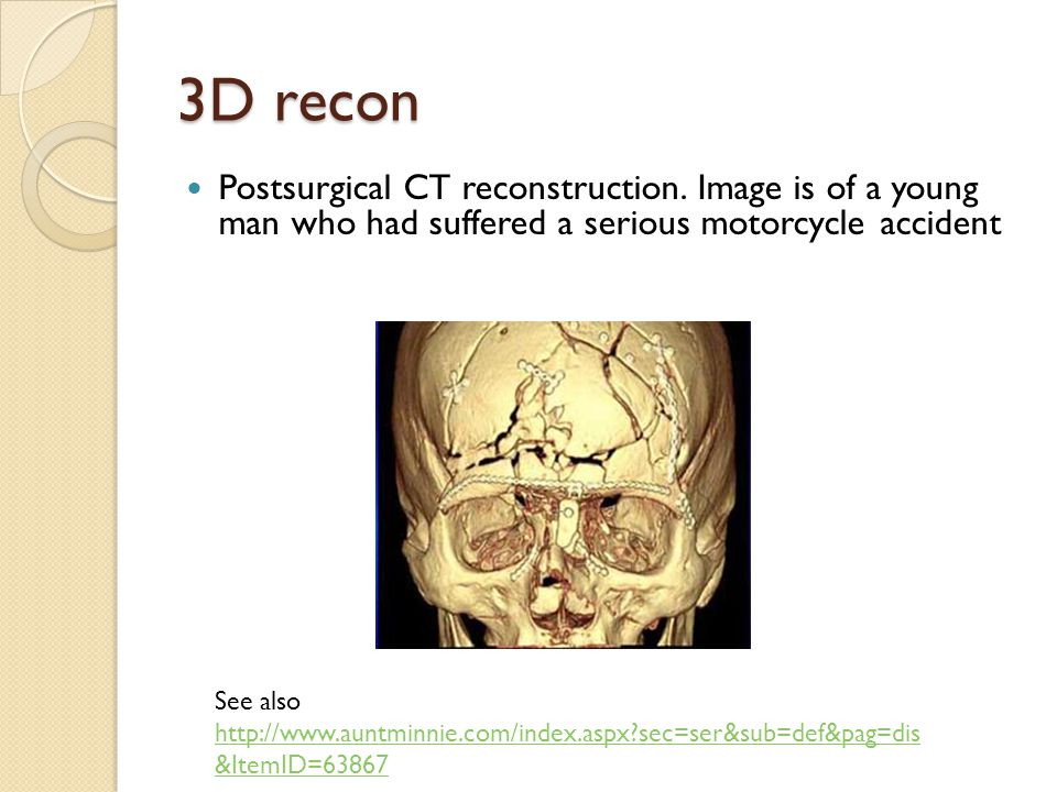 3D recon Postsurgical CT reconstruction.