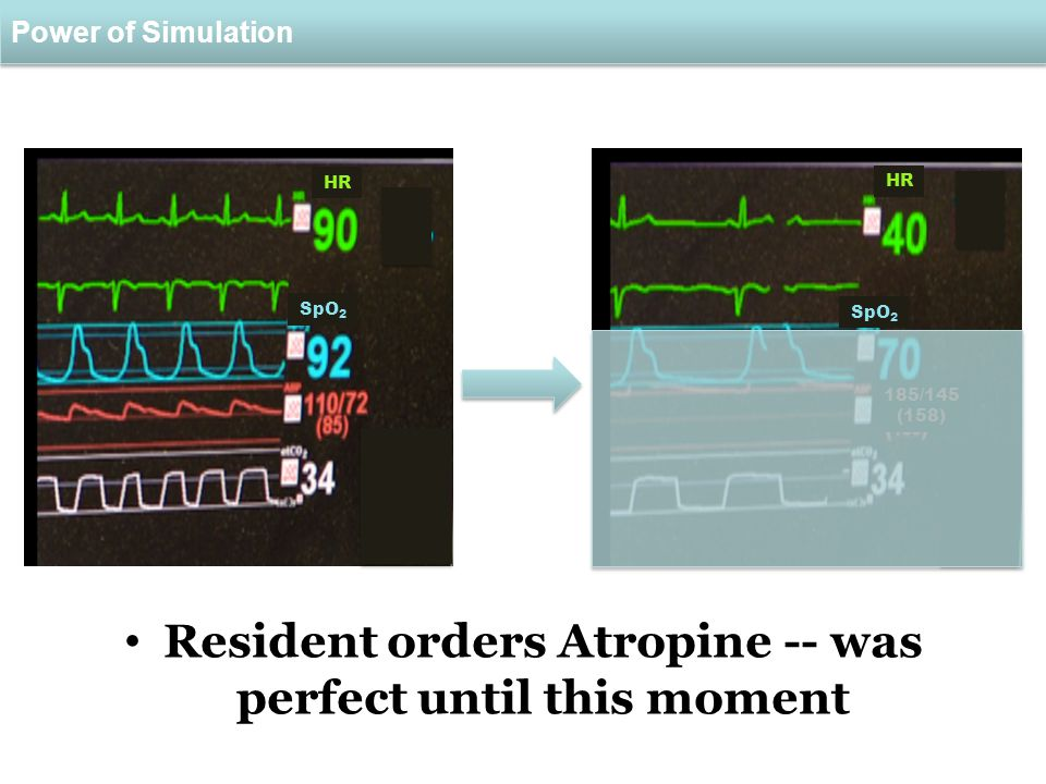 Power of Simulation Resident orders Atropine -- was perfect until this moment 185/145 (158) HR SpO 2 HR SpO 2