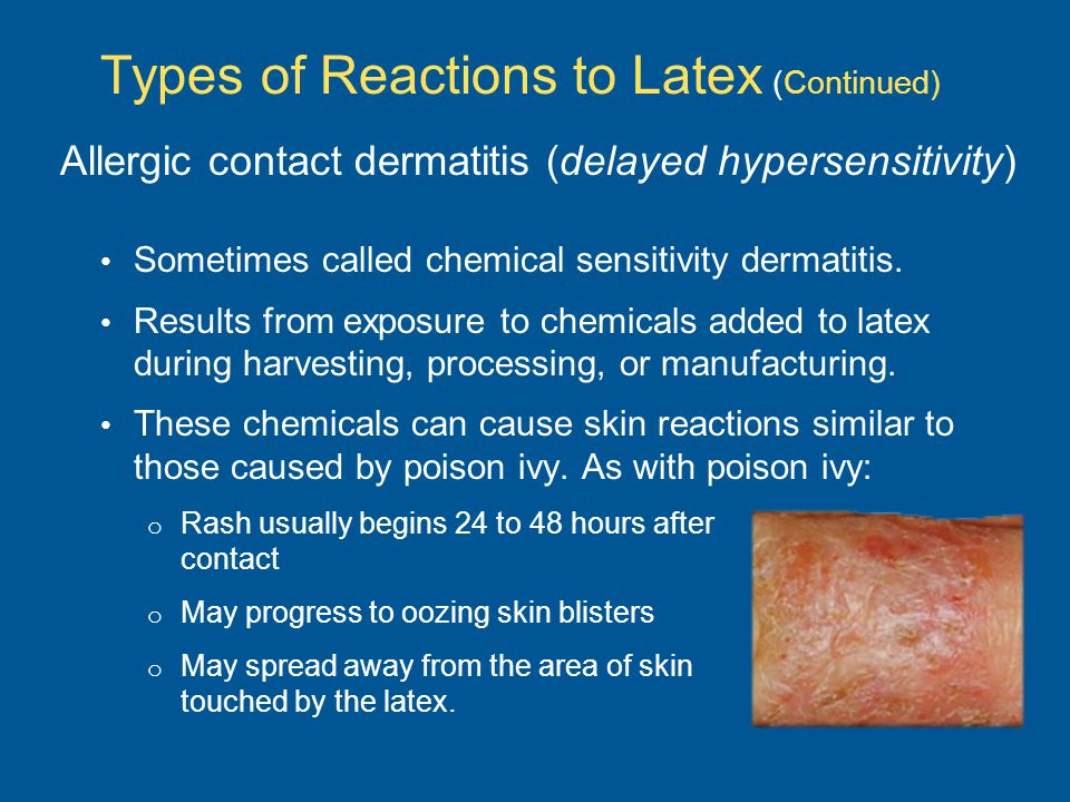 Sometimes called chemical sensitivity dermatitis.