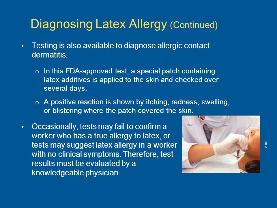 Testing is also available to diagnose allergic contact dermatitis.