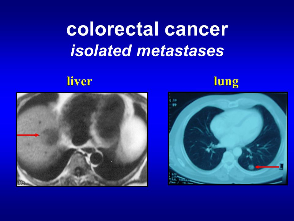 colorectal cancer isolated metastases lungliver