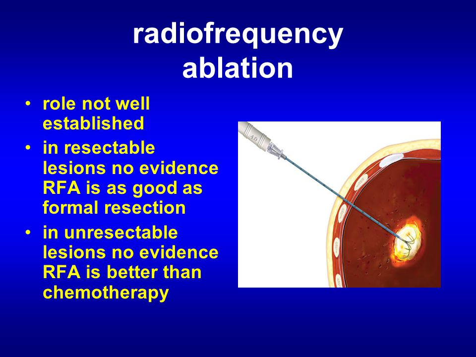 radiofrequency ablation role not well established in resectable lesions no evidence RFA is as good as formal resection in unresectable lesions no evidence RFA is better than chemotherapy