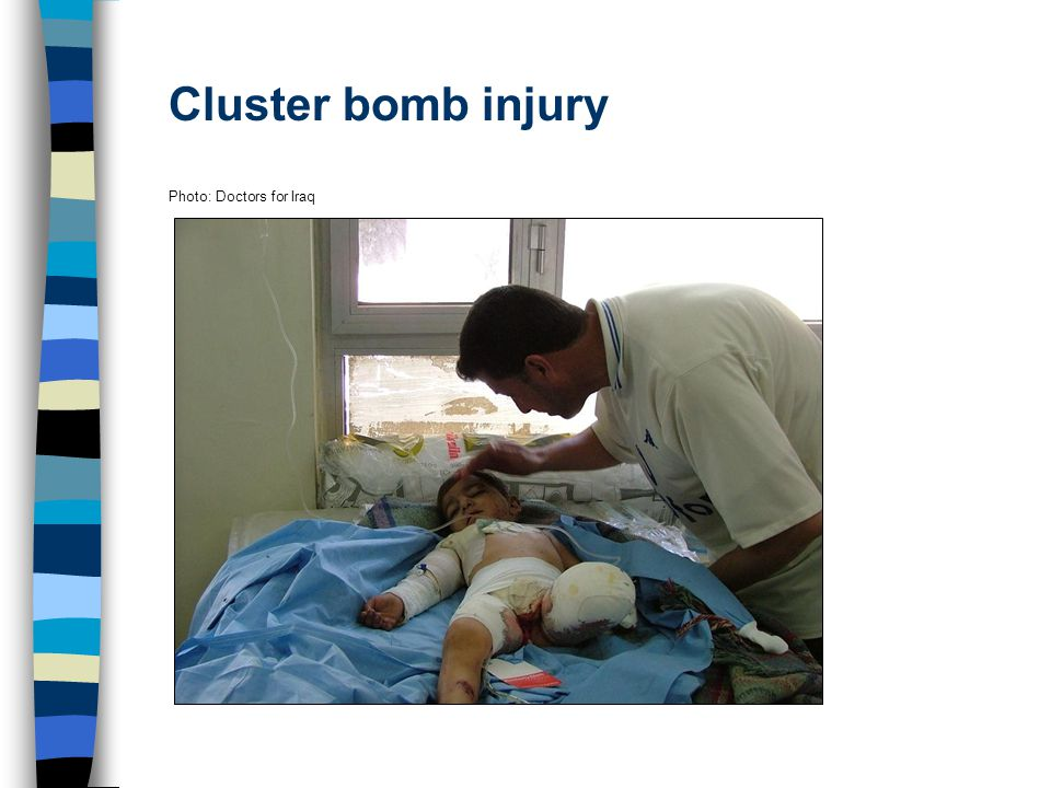 Cluster bomb injury Photo: Doctors for Iraq