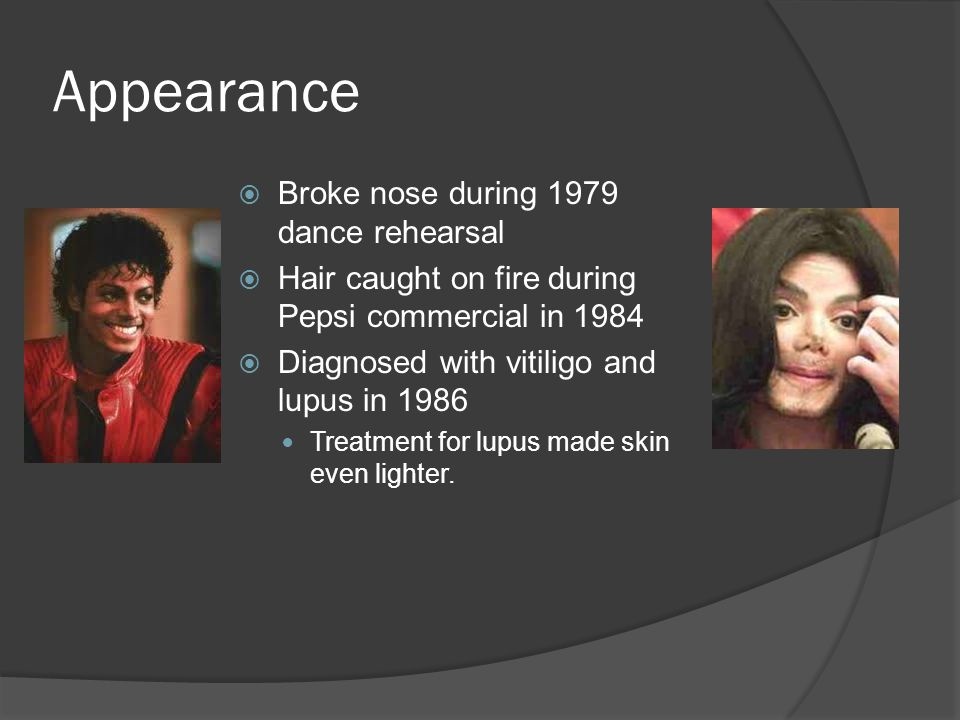 Appearance  Broke nose during 1979 dance rehearsal  Hair caught on fire during Pepsi commercial in 1984  Diagnosed with vitiligo and lupus in 1986 Treatment for lupus made skin even lighter.