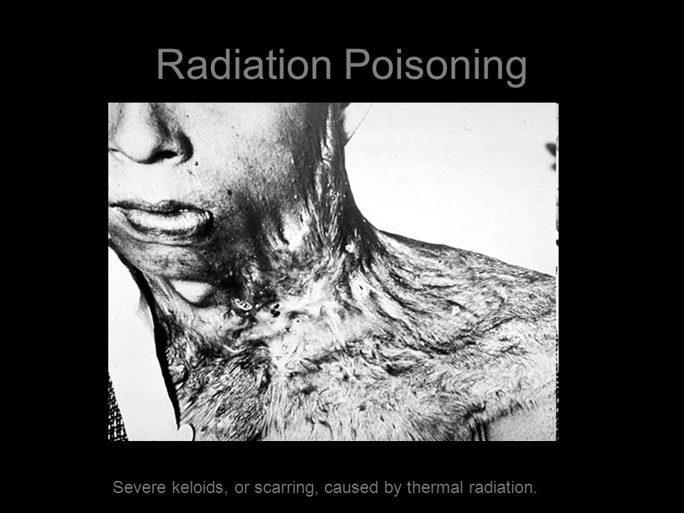 Radiation Poisoning Severe keloids, or scarring, caused by thermal radiation.