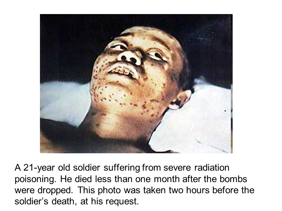 A 21-year old soldier suffering from severe radiation poisoning.