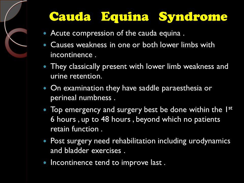 Cauda Equina Syndrome Acute compression of the cauda equina.