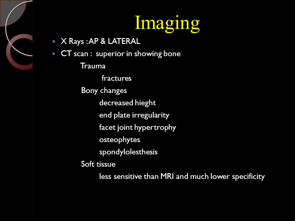 Imaging X Rays : AP & LATERAL CT scan : superior in showing bone Trauma fractures Bony changes decreased hieght end plate irregularity facet joint hypertrophy osteophytes spondylolesthesis Soft tissue less sensitive than MRI and much lower specificity