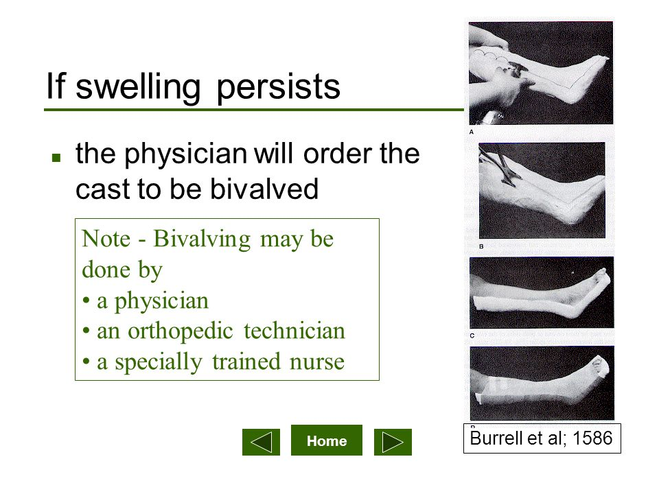 Home If swelling persists n the physician will order the cast to be bivalved Note - Bivalving may be done by a physician an orthopedic technician a sp