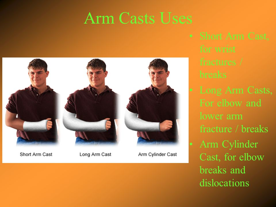 Arm Casts Uses Short Arm Cast, for wrist fractures / breaks Long Arm Casts, For elbow and lower arm fracture / breaks Arm Cylinder Cast, for elbow breaks and dislocations