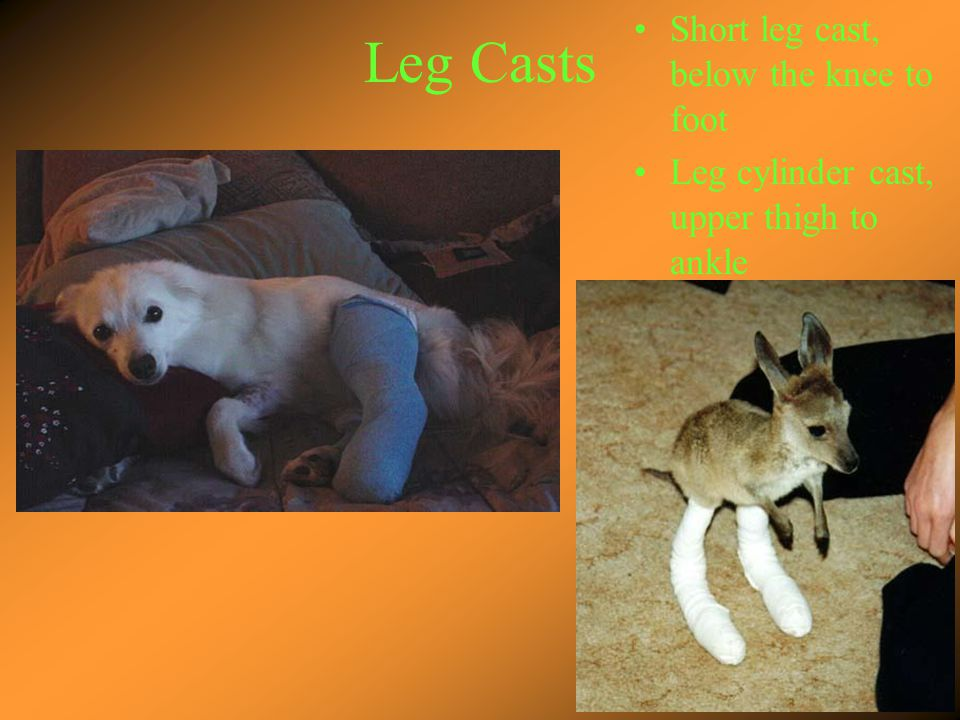Leg Casts Uses Short leg cast, lower leg fractures and severe ankle sprains Leg cylinder cast, knee fractures and dislocations
