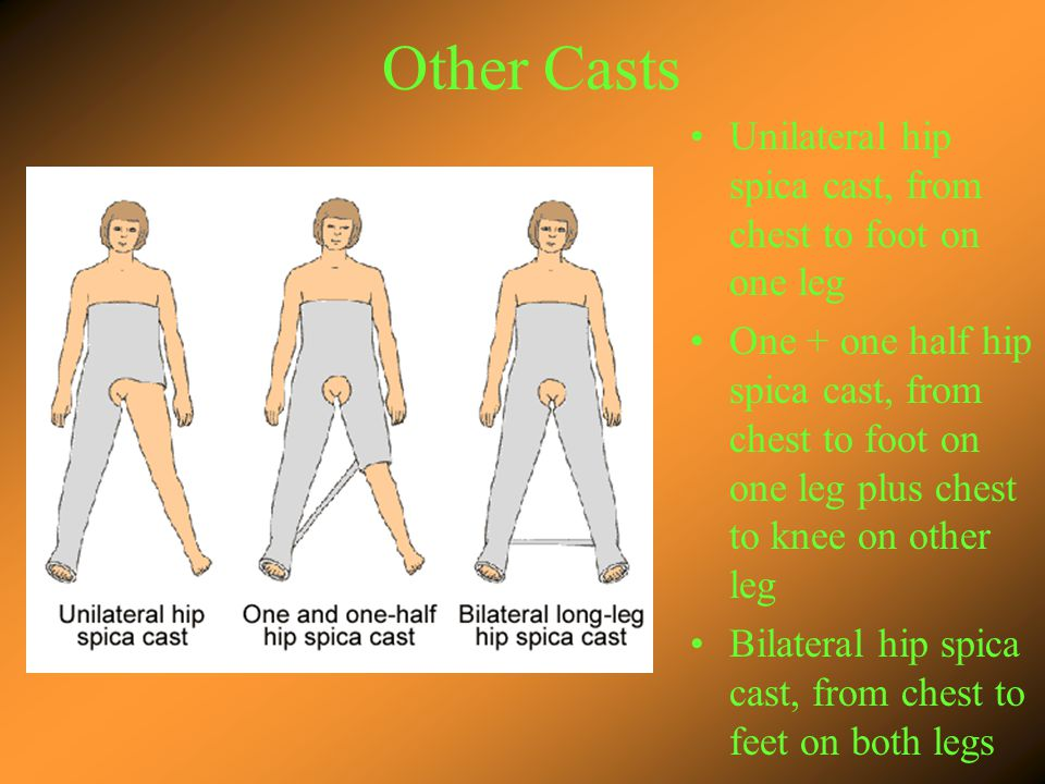Other Casts Unilateral hip spica cast, from chest to foot on one leg One + one half hip spica cast, from chest to foot on one leg plus chest to knee on other leg Bilateral hip spica cast, from chest to feet on both legs