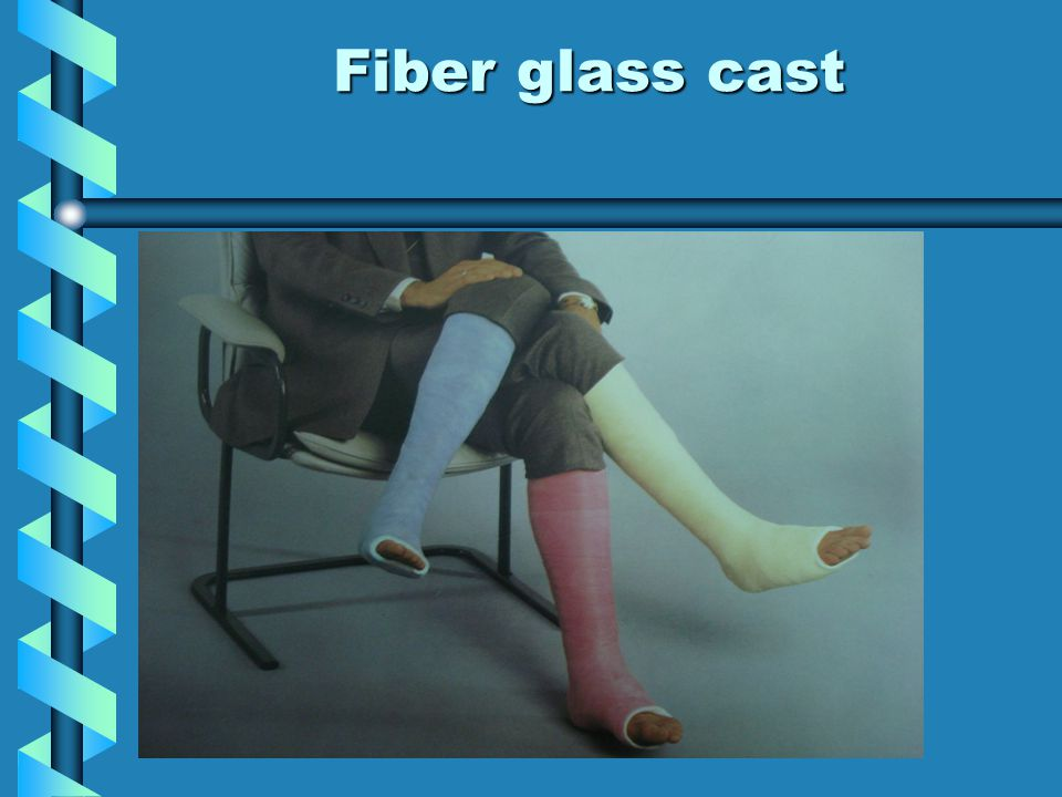 Fiber glass cast Advantage Advantage The materials are strong, light weight, cool, The materials are strong, light weight, cool, water resistant and radiolucent water resistant and radiolucent Disadvantage Disadvantage expensive, sharp edge expensive, sharp edge