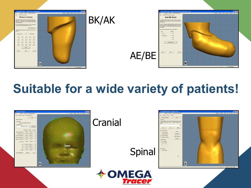 Spinal BK/AK AE/BE Suitable for a wide variety of patients! Cranial