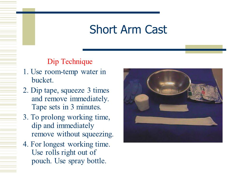 Short Arm Cast Dip Technique 1. Use room-temp water in bucket. 2. Dip tape, squeeze 3 times and remove immediately. Tape sets in 3 minutes. 3. To prol