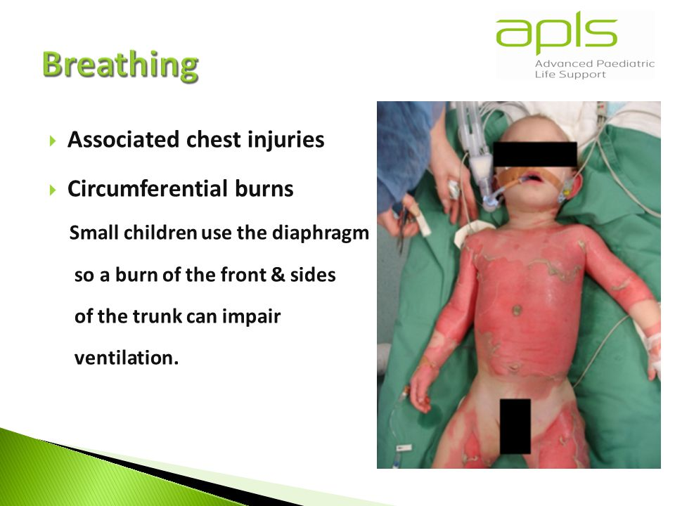  Associated chest injuries  Circumferential burns Small children use the diaphragm so a burn of the front & sides of the trunk can impair ventilation.