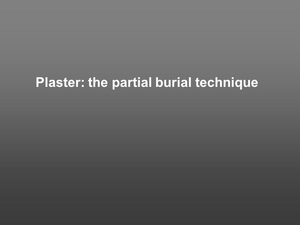 Plaster: the partial burial technique