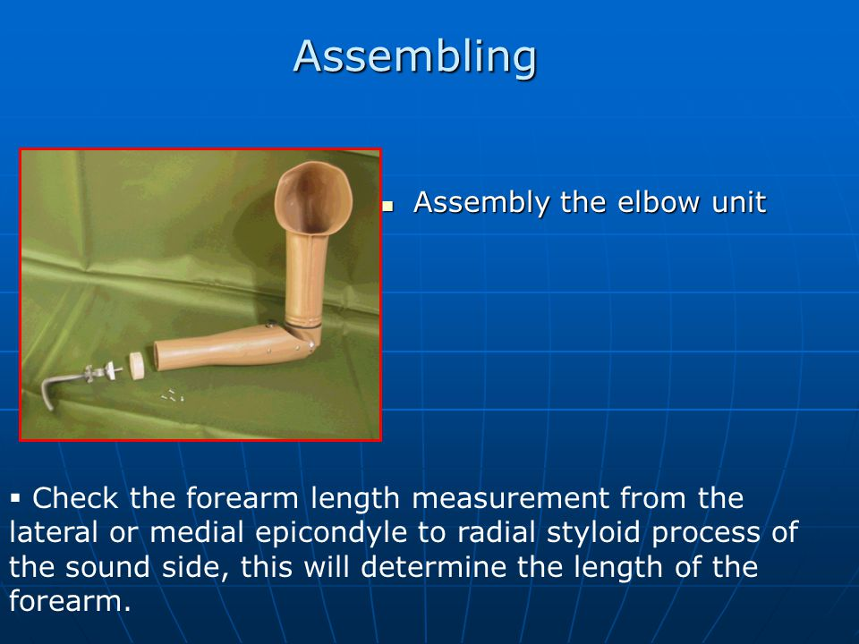 Assembling Assembly the elbow unit Assembly the elbow unit  Check the forearm length measurement from the lateral or medial epicondyle to radial styloid process of the sound side, this will determine the length of the forearm.