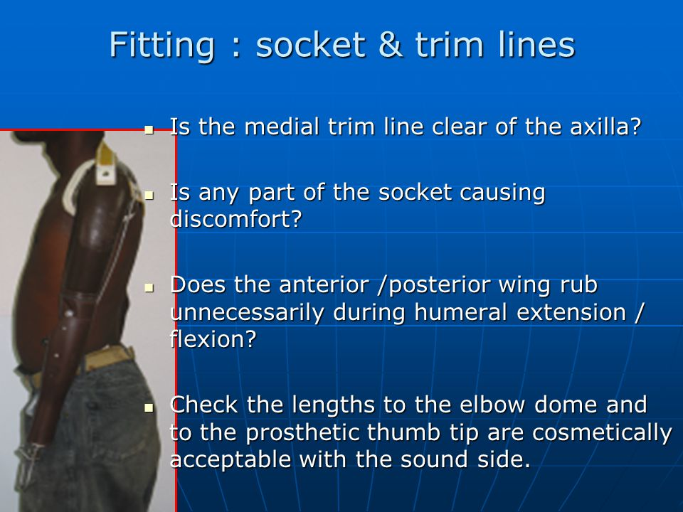 Fitting : socket & trim lines Is the medial trim line clear of the axilla.