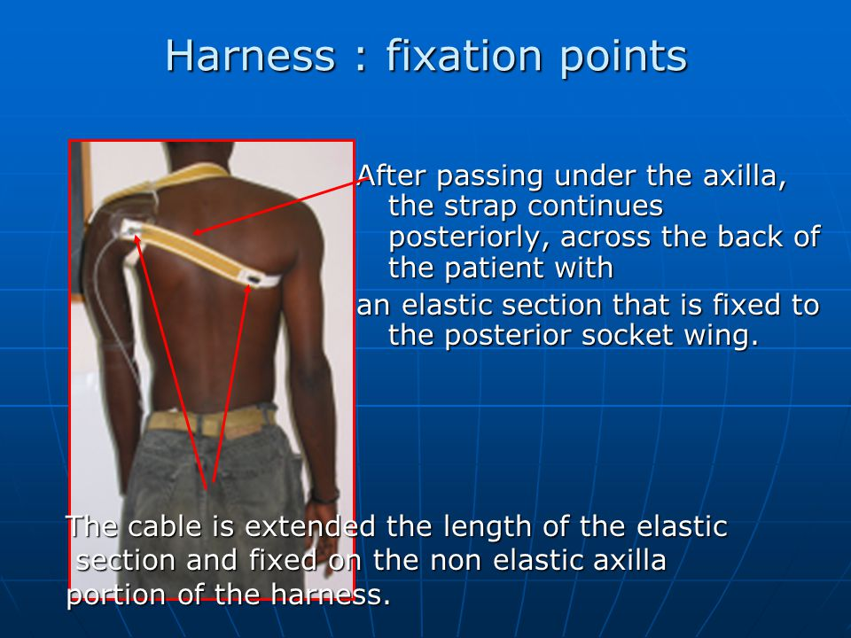 Harness : fixation points After passing under the axilla, the strap continues posteriorly, across the back of the patient with an elastic section that is fixed to the posterior socket wing.
