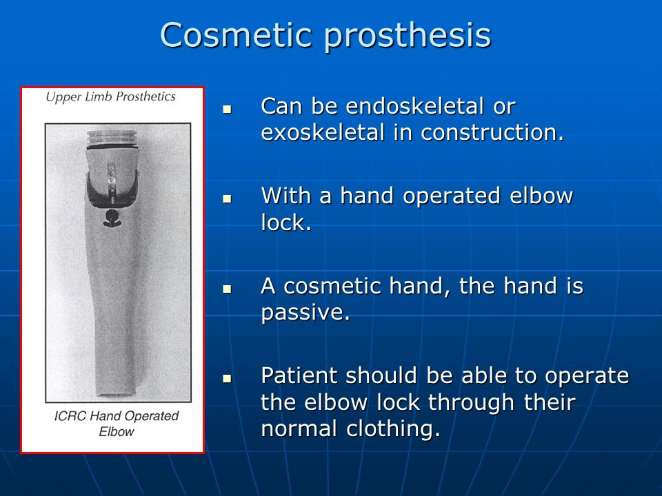 Cosmetic prosthesis Can be endoskeletal or exoskeletal in construction.