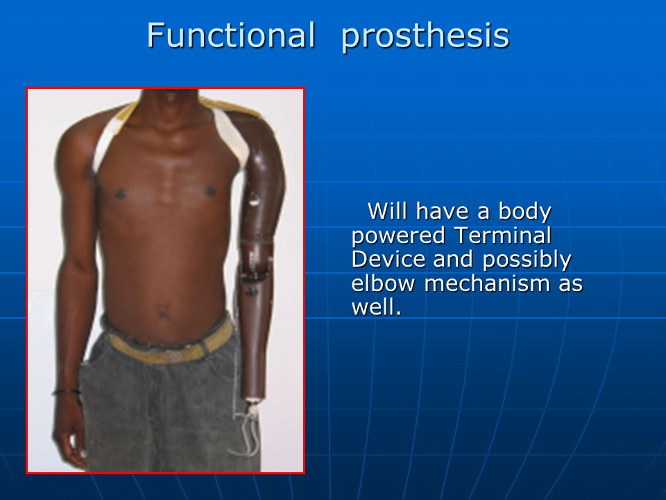 Functional prosthesis Will have a body powered Terminal Device and possibly elbow mechanism as well.