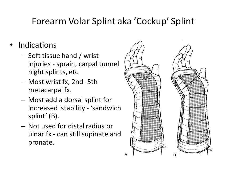 Forearm Volar Splint aka 'Cockup' Splint Indications – Soft tissue hand / wrist injuries - sprain, carpal tunnel night splints, etc – Most wrist fx, 2nd -5th metacarpal fx.