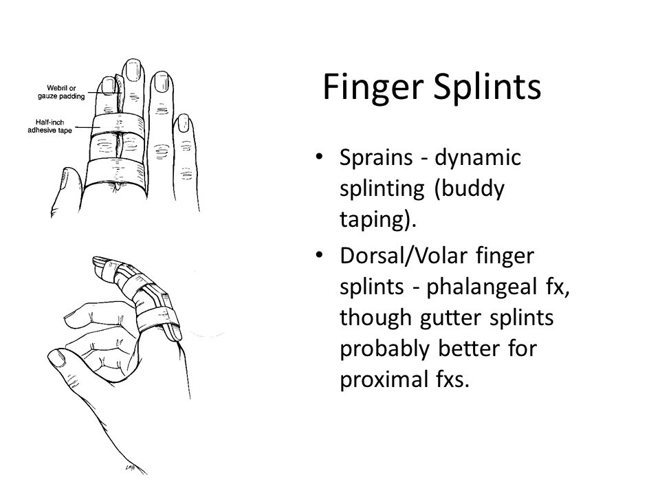 Finger Splints Sprains - dynamic splinting (buddy taping).