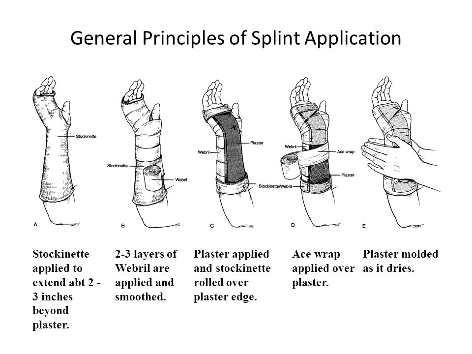General Principles of Splint Application Stockinette applied to extend abt 2 - 3 inches beyond plaster. 2-3 layers of Webril are applied and smoothed.