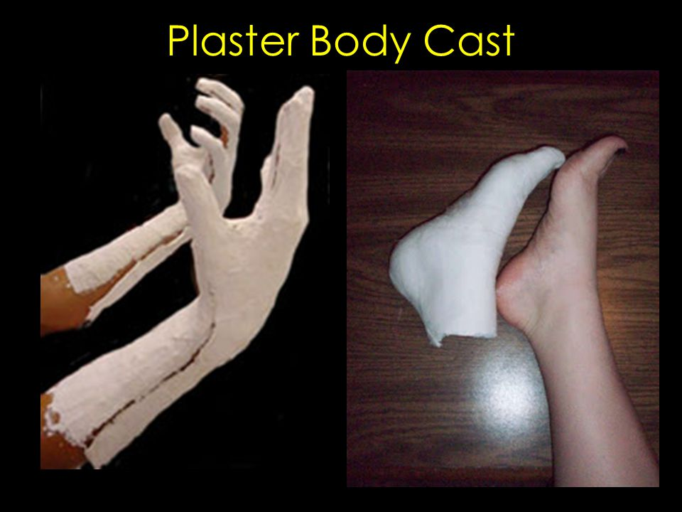 Plaster Body Cast
