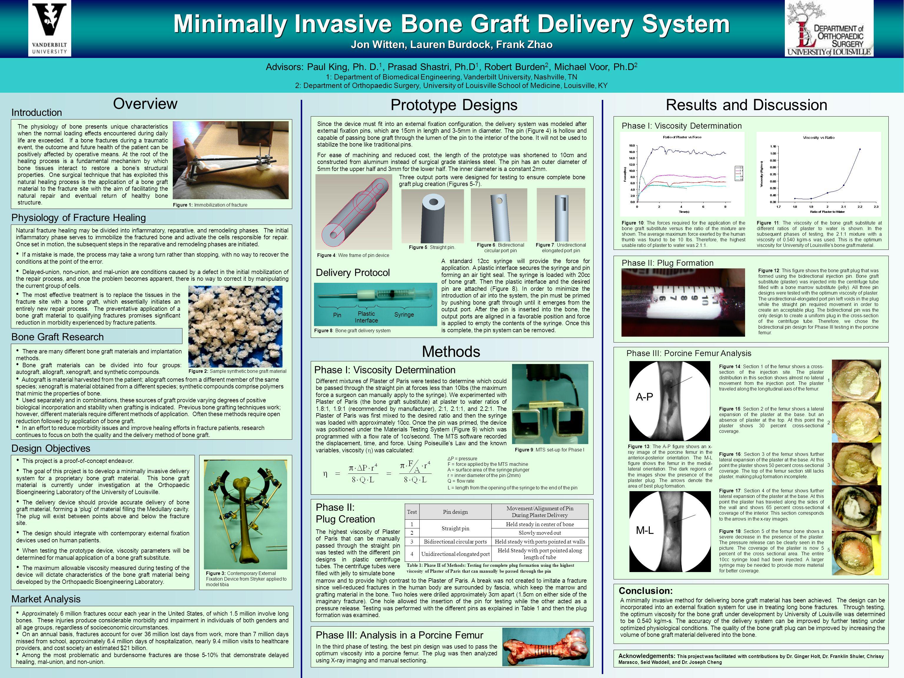 Minimally Invasive Bone Graft Delivery System Jon Witten, Lauren Burdock, Frank Zhao Advisors: Paul King, Ph.
