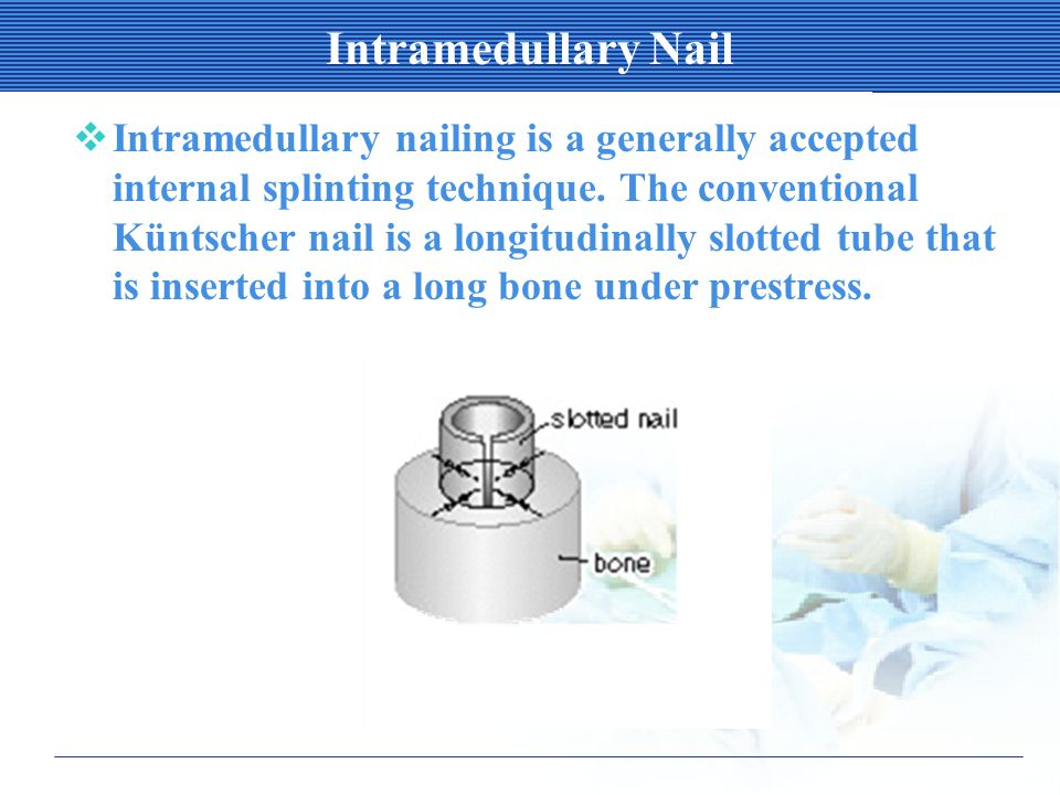 Intramedullary Nail  Intramedullary nailing is a generally accepted internal splinting technique.