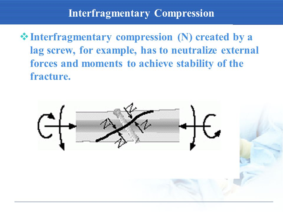 Interfragmentary Compression  Interfragmentary compression (N) created by a lag screw, for example, has to neutralize external forces and moments to achieve stability of the fracture.