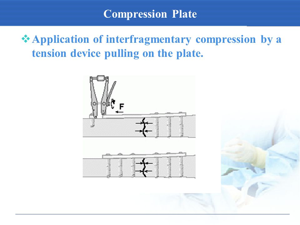 Compression Plate  Application of interfragmentary compression by a tension device pulling on the plate.