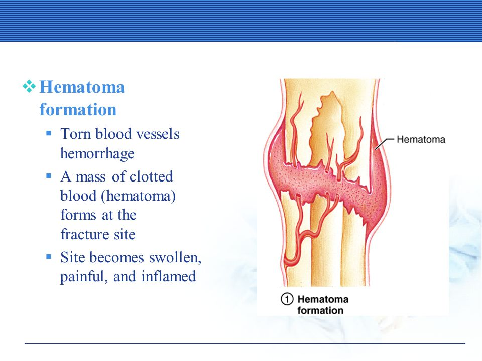 Stages in the Healing of a Bone Fracture  Hematoma formation  Torn blood vessels hemorrhage  A mass of clotted blood (hematoma) forms at the fracture site  Site becomes swollen, painful, and inflamed