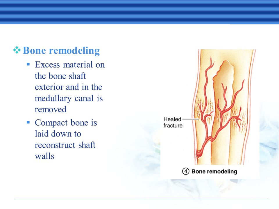Stages in the Healing of a Bone Fracture  Bone remodeling  Excess material on the bone shaft exterior and in the medullary canal is removed  Compact bone is laid down to reconstruct shaft walls