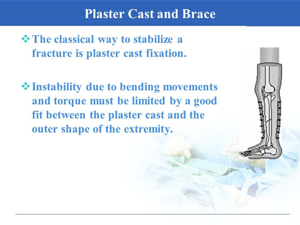 Plaster Cast and Brace  The classical way to stabilize a fracture is plaster cast fixation.