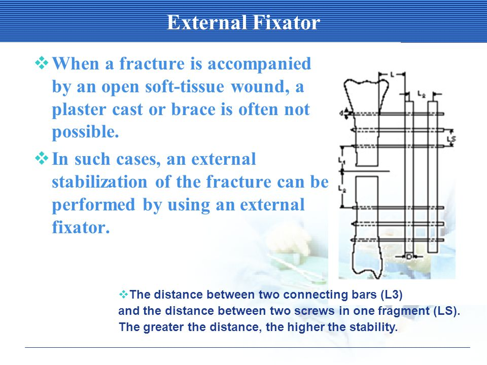 External Fixator  When a fracture is accompanied by an open soft-tissue wound, a plaster cast or brace is often not possible.