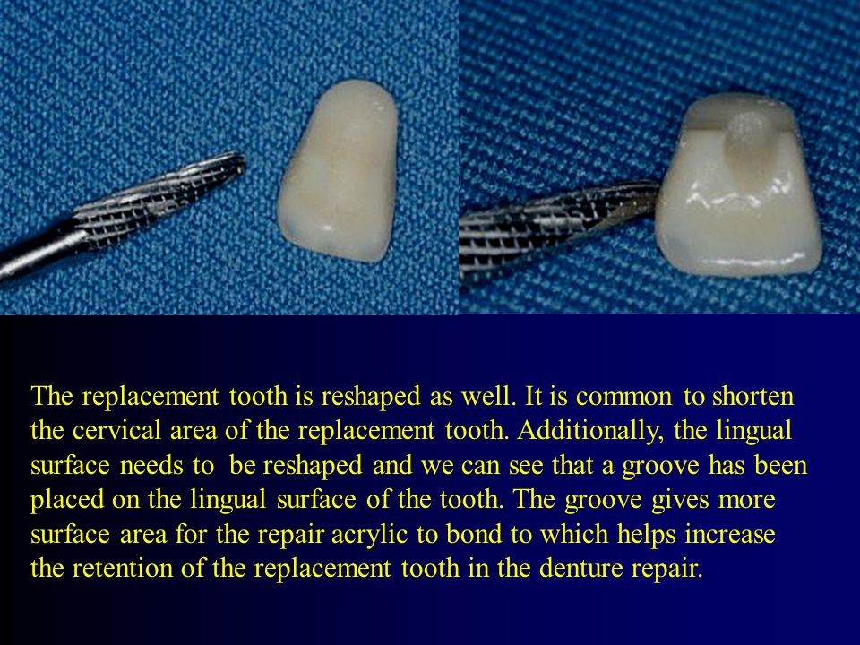 The replacement tooth is reshaped as well.
