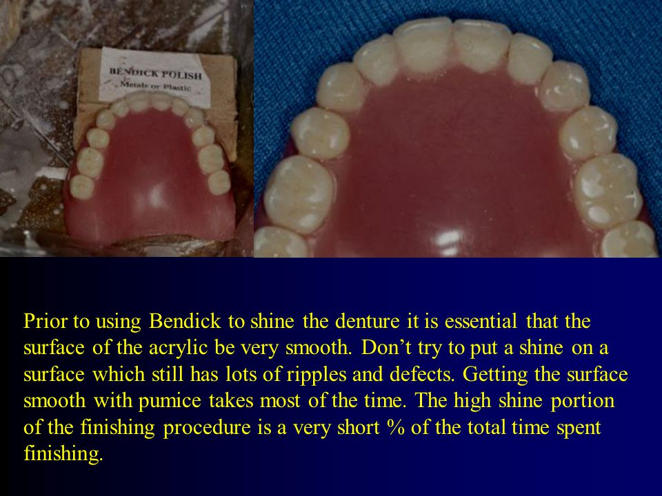 Prior to using Bendick to shine the denture it is essential that the surface of the acrylic be very smooth.