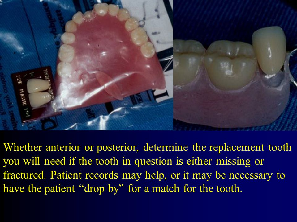 Whether anterior or posterior, determine the replacement tooth you will need if the tooth in question is either missing or fractured.