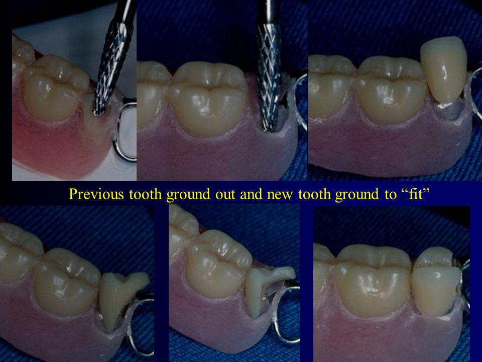 Previous tooth ground out and new tooth ground to fit