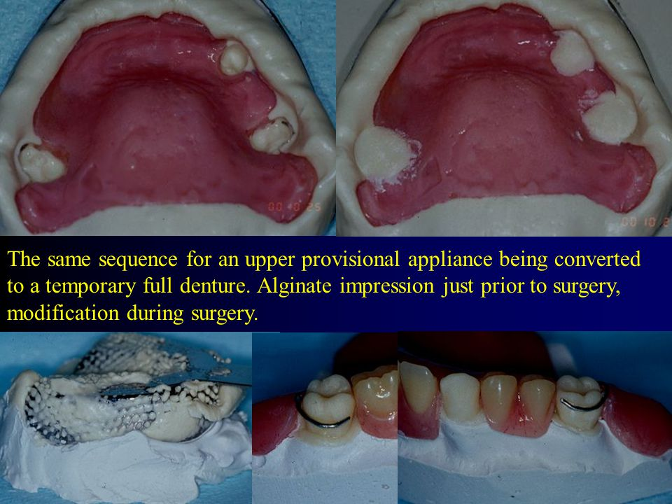 The same sequence for an upper provisional appliance being converted to a temporary full denture.