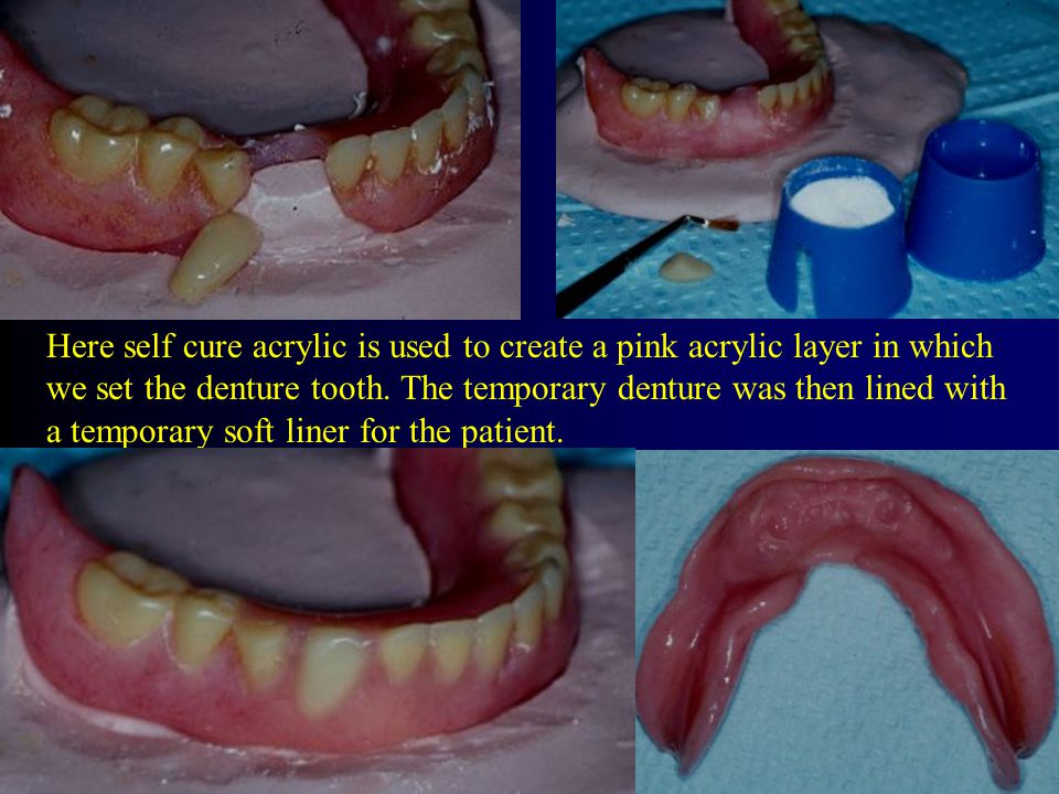 Here self cure acrylic is used to create a pink acrylic layer in which we set the denture tooth.