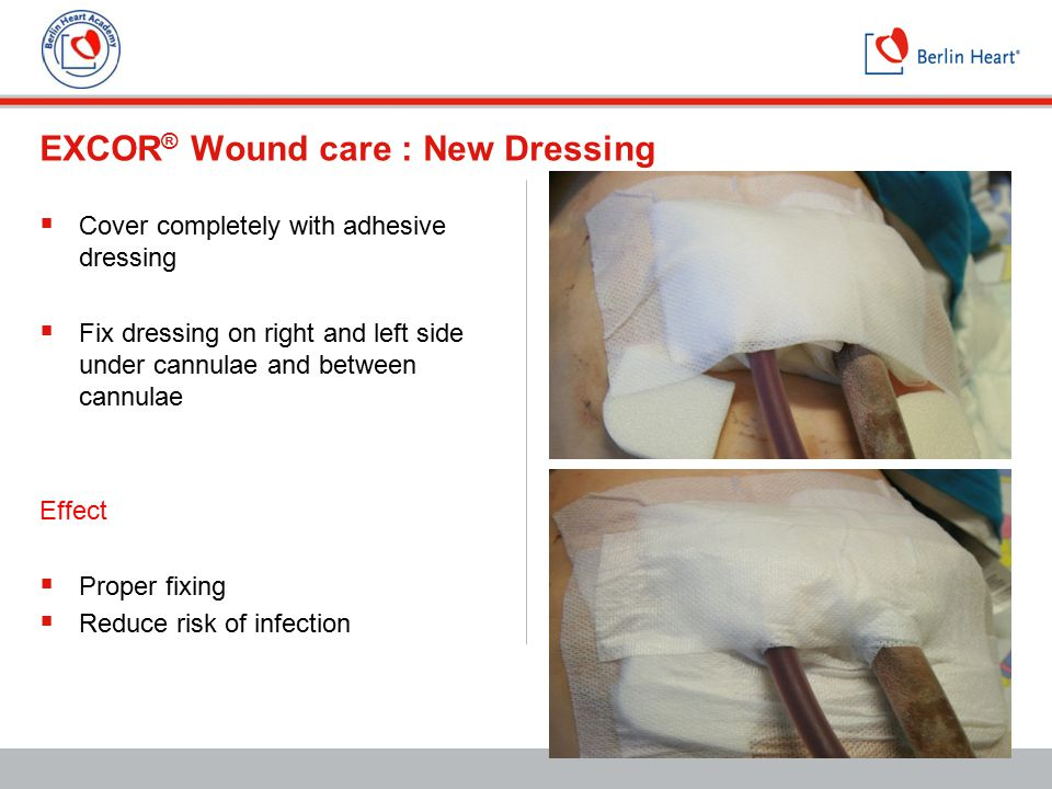 EXCOR ® Wound care : New Dressing  Cover completely with adhesive dressing  Fix dressing on right and left side under cannulae and between cannulae