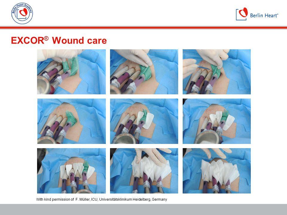 EXCOR ® Wound care With kind permission of F. Müller, ICU, Universitätsklinikum Heidelberg, Germany